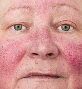 SPRENGTE BLODKAR: Hudpleier Kristine Hodneland forteller at kulden også kan føre til frostskader som sprengte blodkar. Foto: Scanpix.