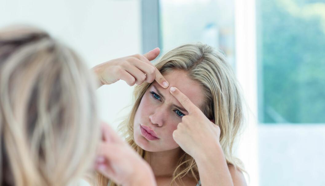 UREN HUD: Mindre kviser og uren hud er en bivirkningene p-piller kan gi og dermed kan dette komme tilbake når du slutter på p-pillene. FOTO: NTB Scanpix