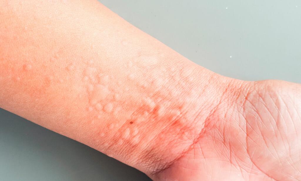ELVEBLEST: Flammete, vablete utslett som kan ha blemmer og klør. Hvis du har brent deg på en brennesle kjenner du igjen symptomene i mild form. FOTO: Ntb Scanpix /Shutterstock