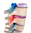 prolaps rygg symptomer