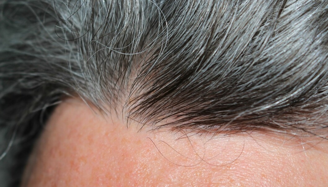 GRÅTT HÅR: De fleste av oss får grått hår i løpet av livet, men det behøver slett ikke å være negativt. Foto: Scanpix.