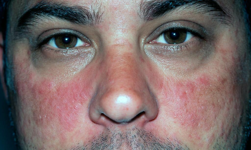 UTSLETT: Mann på 35 år med klassisk lupus-utslett i ansiktet, med form som en sommerfugl. Ved lupus kan man få utslett flere steder på kroppen. Foto NTB Scanpix / Science Photo.