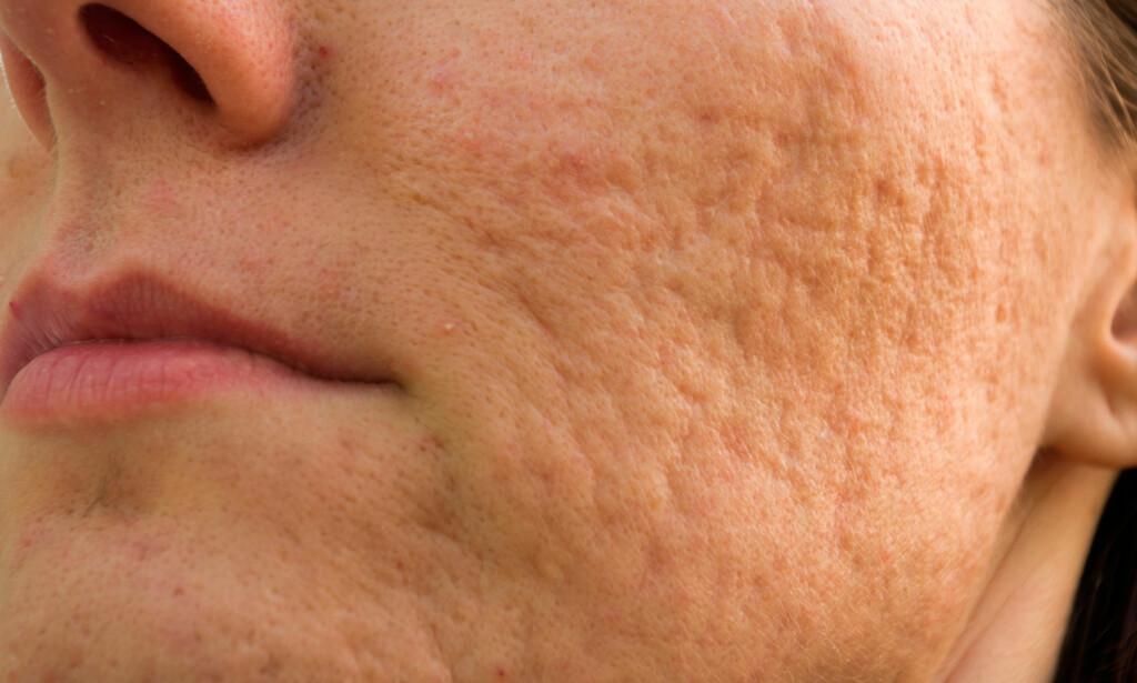 ARR ETTER KVISER: Det finnes ulike typer arr etter kviser i huden. På bildet ser du atrofiske arr som flere søkk i huden. Foto: NTB Scanpix / Shutterstock