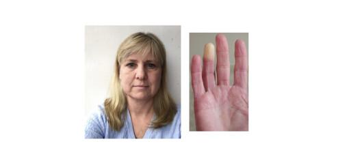 «Likfingre» kan være et tegn på underliggende sykdom