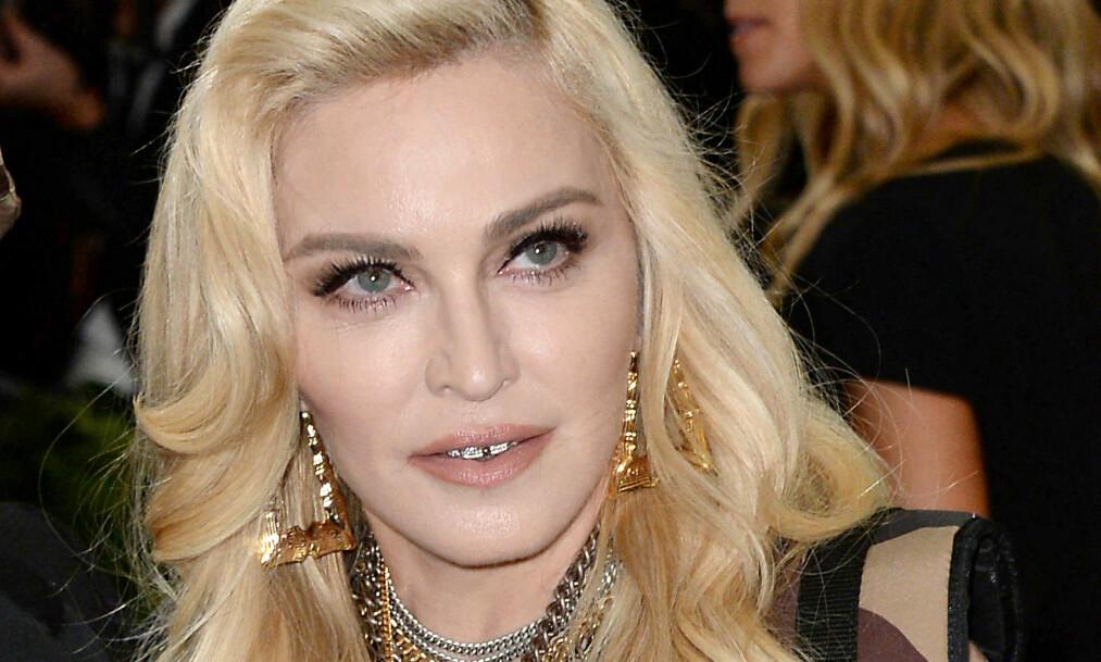 PLETTFRI HUD: Popartisten Madonna fyller 60 år i sommer, men hun ser nok en god del yngre ut enn alderen tilsier. Foto: NTB Scanpix
