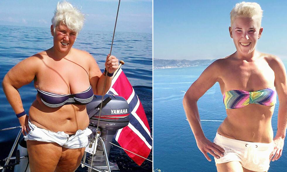 IKKE TIL Å KJENNE IGJEN: Ida Hovland veide 130 kilo på det meste. Ett års tid etter slankeoperasjonen veide hun så vidt 50 kilo. Men hun var ute av stand til å se at spiseforstyrrelsene gjorde henne syk.