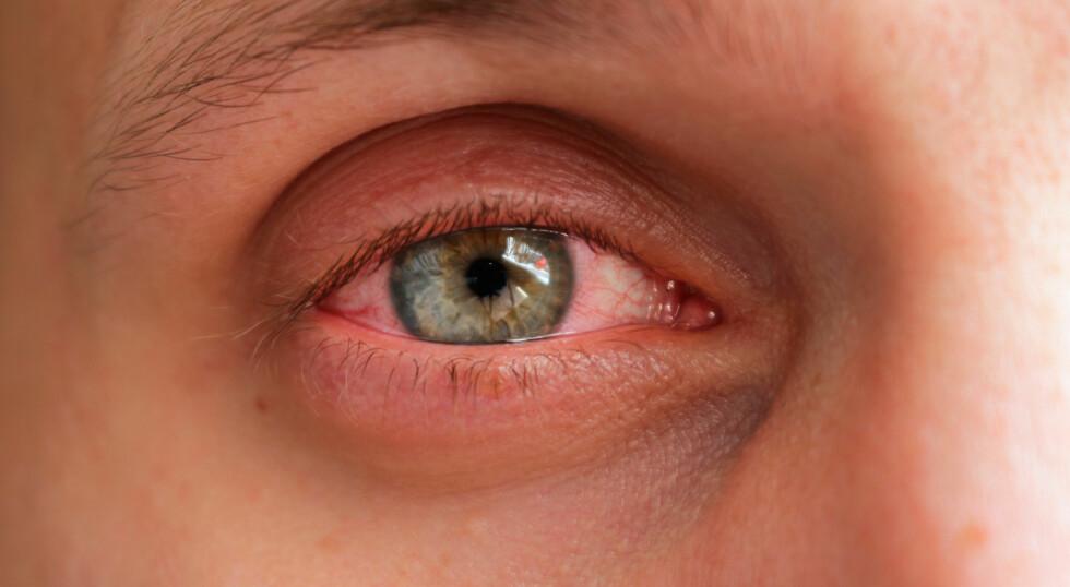 RØDE, HOVNE ØYNE: som også klør... er ofte tegn på allergi. Foto: NTB Scanpix / Shutterstock