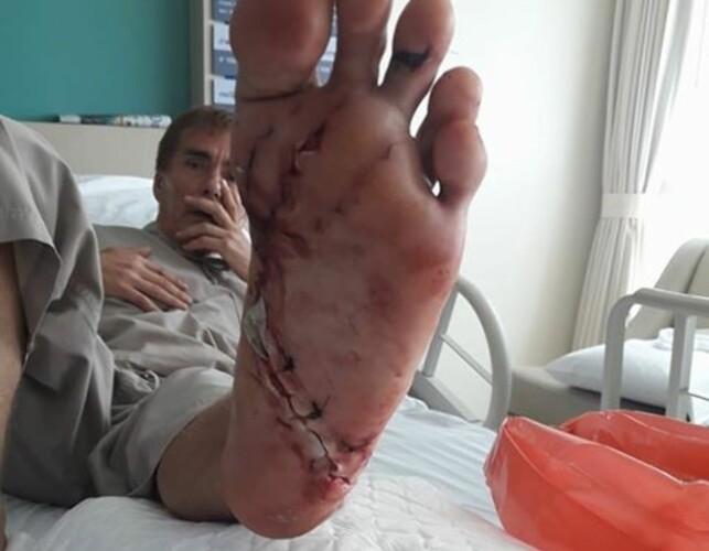 STORE SKADER: Danielsen sier at mange bein i venstre fot er knust. Foto: Amonrat Phaengnga