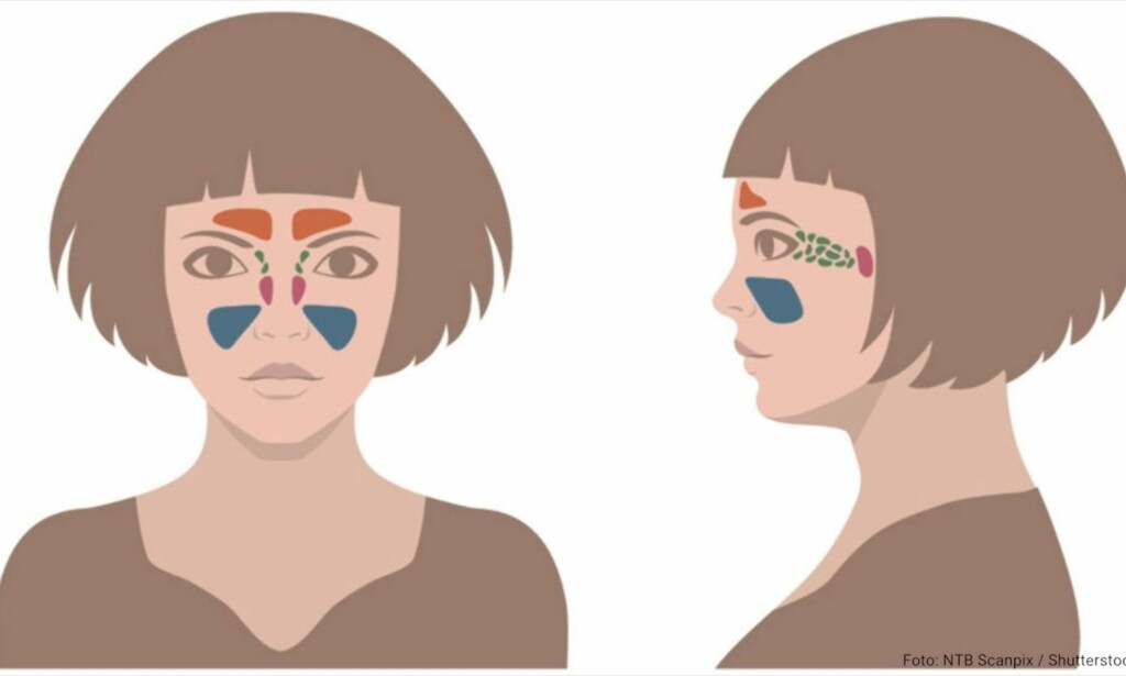 TETTE BIHULER: Det gjør vondt i ansiktet, nesen er tett og noen får også feber. Foto: NTB Scanpix/Shutterstock