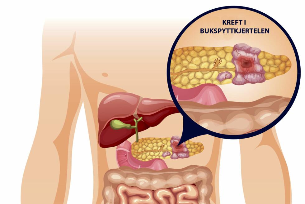 KREFT I BUKSPYTTKJERTEL: Det er kjertelcellene som produserer bukspytt som vanligvis rammes av kreft. Denne type kreft gir ikke mange symptomer. Gulsott kan være første tegn.