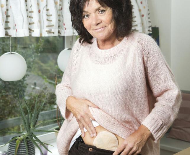 image: Bente (54) fikk tarmkreft. - Jeg tenkte «nå er det min tur»
