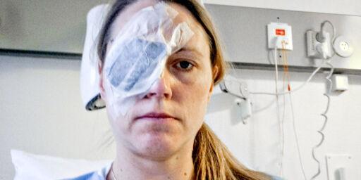 image: Føflekk-kreft kan dukke opp andre steder enn på huden i det skjulte