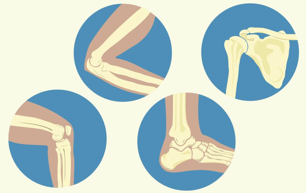 EN LØS BIT I LEDDET: Leddmus rammer kne, albue, ankel eller skulder. Illustrasjon: NTB Scanpix / Shutterstock