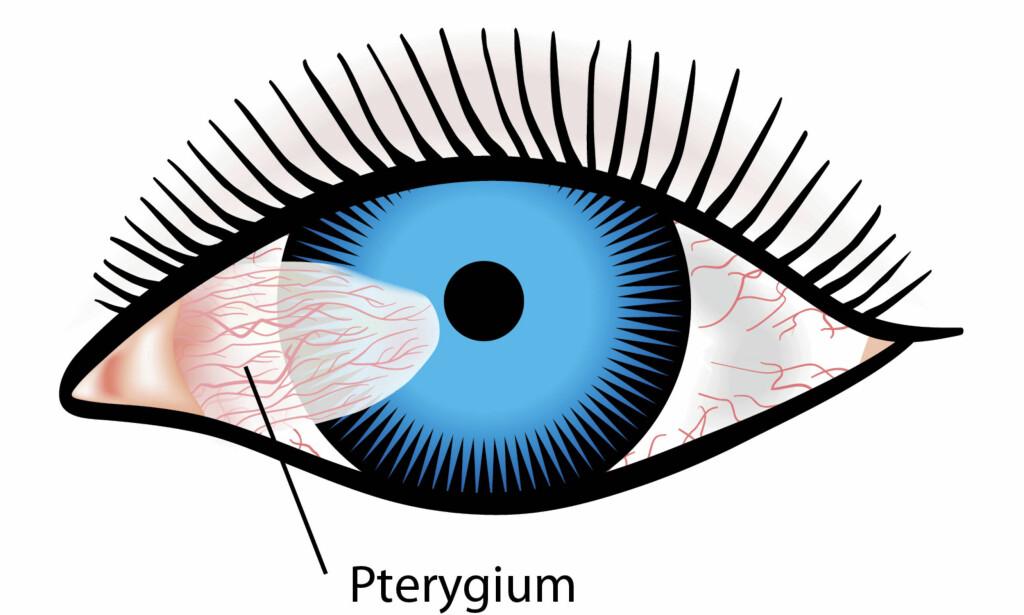 """PTERYGIUM: Denne tilstanden kan ses som en """"vinge"""" eller trekantformet utvekst i øyet. Illustrasjon: NTB Scanpix / Shutterstock"""
