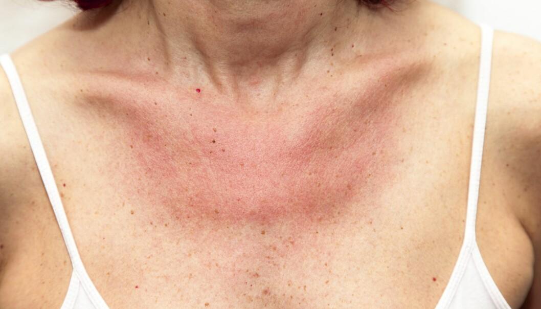 SOLEKSEM: Soleksem kan være svært plagsomt, men det kan heldigvis både forebygges og behandles. FOTO: NTB Scanpix