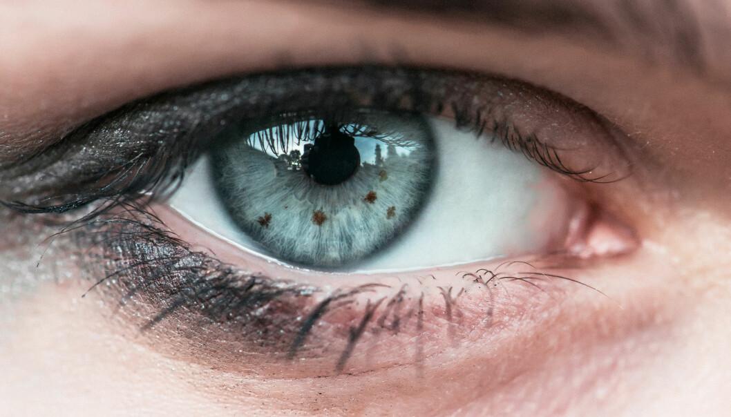 FØFLEKKER: Føflekker på øynene er ikke farlig. FOTO: NTB Scanpix