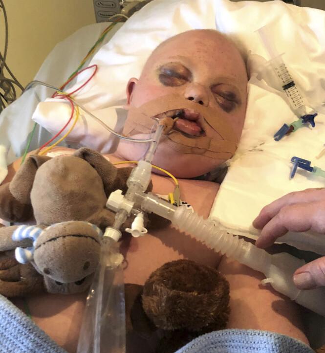 <strong>AVANSERT BEHANDLING:</strong> Martin har så langt vært behandlet tre ganger for kreft, den tredje gangen ved hjelp av en kostbar og avansert ny metode. Foto: Privat