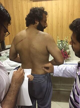 LEGESJEKK: Kadafi Zaman ble slått med stokker og har fått brist i ribbeina, flere blåmerker og hevelser på armene. Foto: Privat