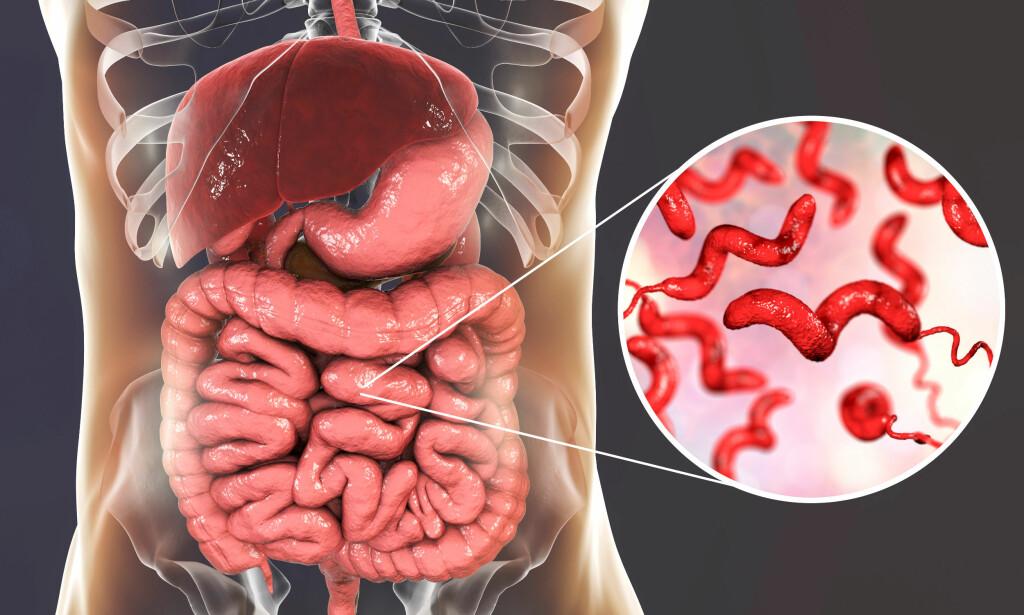 INFEKSJON I TARMEN: Campylobacter kan skilles ut med avføringen i flere uker etter at man føler seg frisk. Foto: NTB Scanpix / Shutterstock