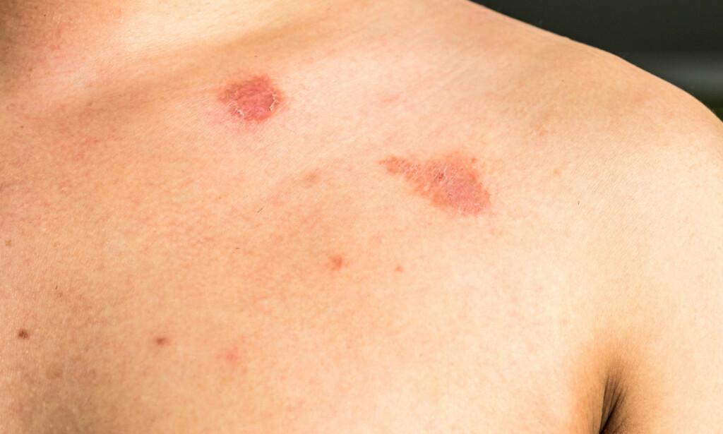 """SOPP I HUDEN: En soppinfeksjon i huden med runde, røde flekker i huden, ofte med lett flassing kan være ringorm. Flekken er gjerne litt blekere i midten og mer markert på kantene. """"Ringorm"""" har ikke noe med orm å gjøre! Foto: NTB Scanpix"""
