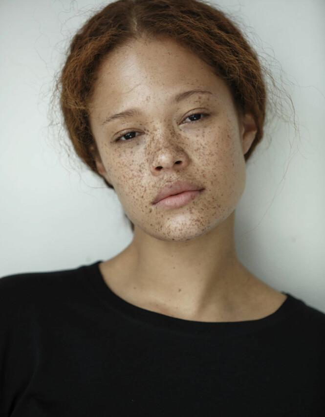 UNIK: Modellen lærte seg tidlig å sette pris på sitt unike utseende, og sier at hun aldri har følt seg særlig annerledes i oppveksten i Sverige. Foto: JAG Models