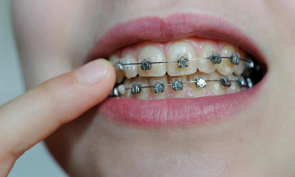 KAN KUTTE STØTTE: Regjeringen vurderer å fjerne deler av støtten for tannregulering i neste års statsbudsjett. Det høster, ikke uventet, kritikk. Foto: Frank May / NTB scanpix