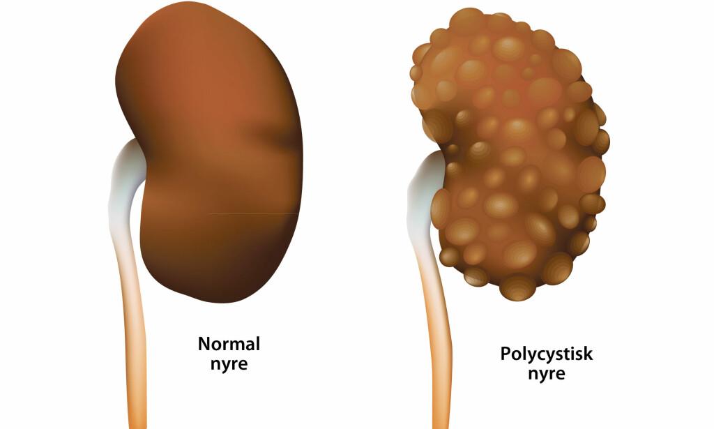 CYSTENYRE: En arvelig sykdom som gir flere cyster i begge nyrene