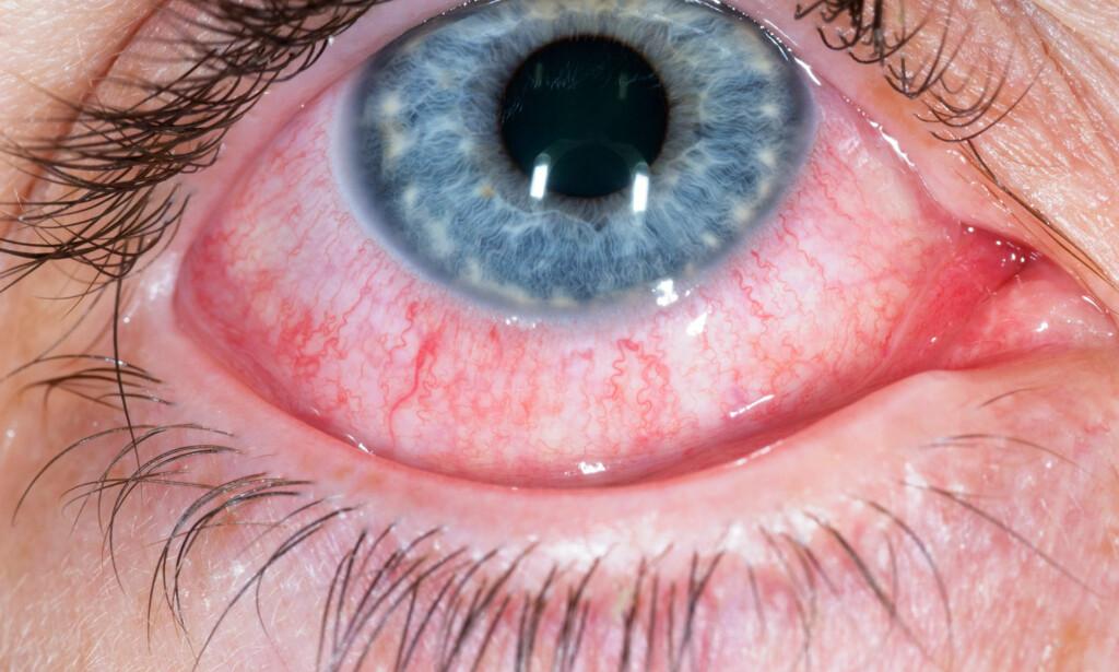 Nærbilde av et rødt og betent øye hos en pasient med konjunktivitt som skyldes virus. Foto: NTB Scanpix / Science Photo Libary