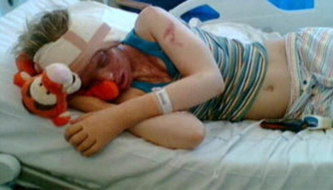 HARDT SKADD: Katie Piper stod fram i programmet «My beautiful face» som dokumenterte behandlingen og bedringen hennes. Her er hun fotografert på sykehuset kort tid etter angrepet. Foto: Stella Pictures
