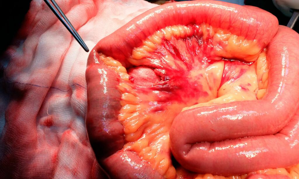 TARMKRØS: Det gule, fettaktige vevet du ser på bildet innenfor tarmen er tarmkrøsen. Organet binder sammen fordøyelsessystemet, og har sannsynligvis flere funksjoner som vi ikke vet nok om enda. Foto: NTB Scanpix/Shutterstock