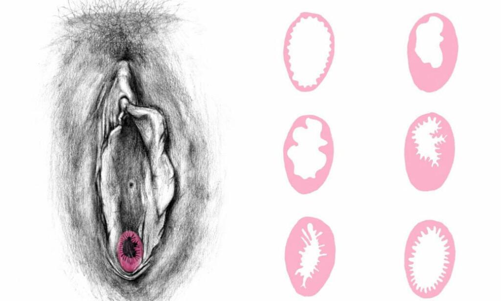 JOMFRUHINNE: Skjedekrans er et mer korrekt begrep enn jomfruhinne, og de kan se veldig forskjellige ut. Allerede i fosterlivet får den en sentral åpning, men graden av nedbrytning kan variere. En kompakt hinne er svært sjeldent. (Illustrasjon: RFSU)
