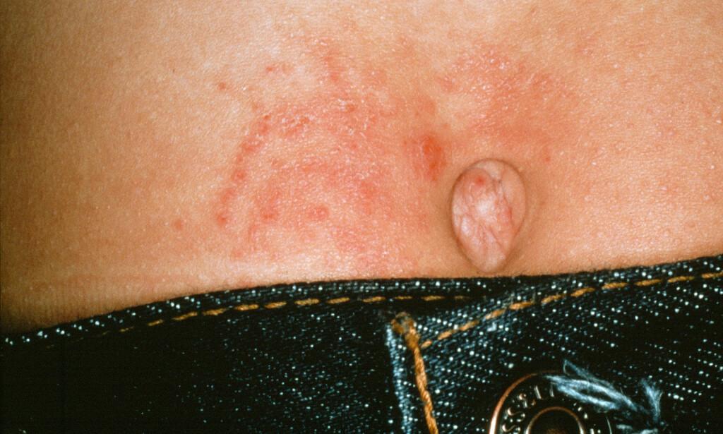 KONTAKTEKSEM: Nikkelallergi kan gi et eksem/utslett der nikkel har vært i kontakt med huden. På bildet ser du at en metallknapp i en bukse har gitt eksem på magen ved navlen. Foto: NTB Scanpix / Science Photo Libary