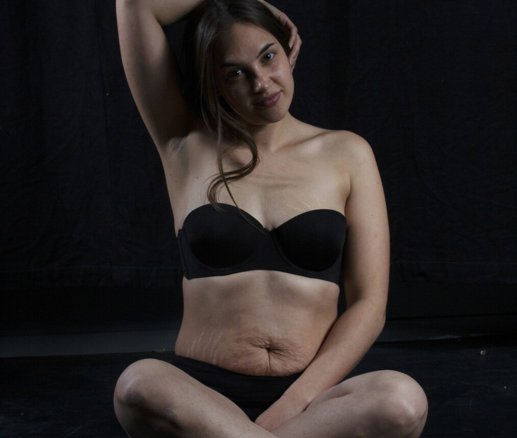 KJÆRLIGHETSTATOVERINGER: Ingerine har i mange år hatet kroppen sin og strekkmerkene sine. Nå elsker hun hvem hun er og mener at kroppen bærer på en unik historie - og ser på strekkmerkene sine som kjærlighetstatoveringer. FOTO: Salamatu Kamara