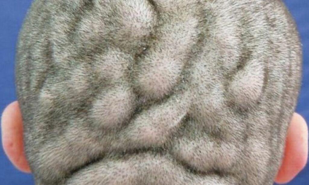 image: Sjelden hudsykdom får hodebunnen til å likne hjernen