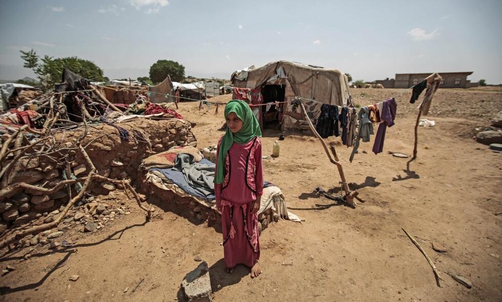 USKYLDIG OFFER: Denne jemenittiske jenta, fotografert utenfor hytta si i en flyktningleir i Hajja for noen dager siden, er et offer for maktkampen mellom den Saudi-Arabia-støttede regjeringen og houthier i Jemen. 22 millioner mennesker, 75 prosent av befolkningen, har ifølge UNCHR behov for nødhjelp. Foto: Hani Al-Ansi / DPA / NTB Scanpix