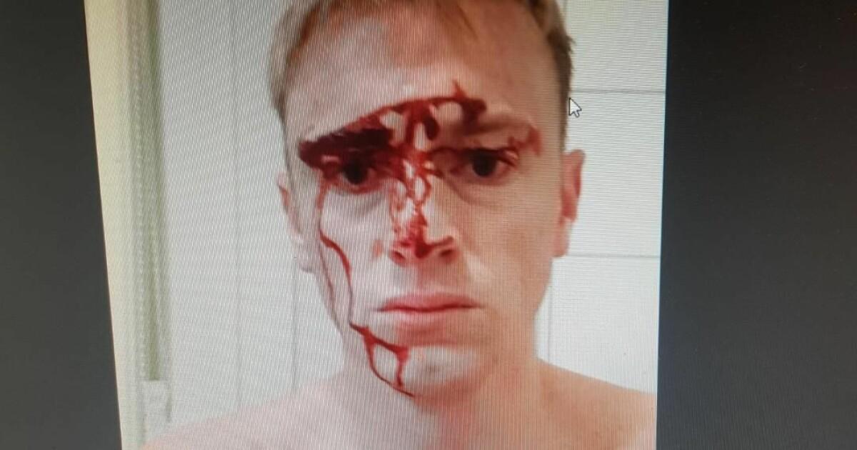 Trygve (37) overmannet innbruddstyven etter at han ble slått med jernstang