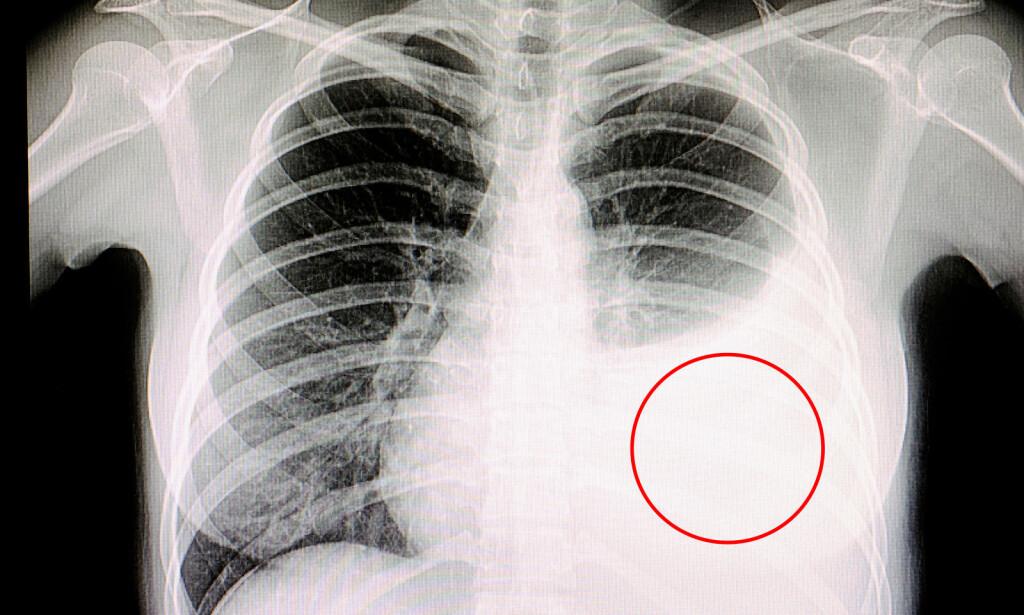 PLEURAVÆSKE: Røntgenbildet viser mann med tuberkulose og stor væskeansamling i lungesekken - dette kalles pleuravæske. Foto NTB Scanpix/Shutterstock