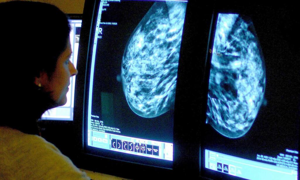 HVA SKJER NÅR DU HAR BRYSTKREFT: Mammografi brukes i utredning av brystkreft. Her sjekker en radiolog funn på et bilde. Ytterligere undersøkelser er nødvendig. Foto: NTB Scanpix/Pa Photos/Rui Vieira