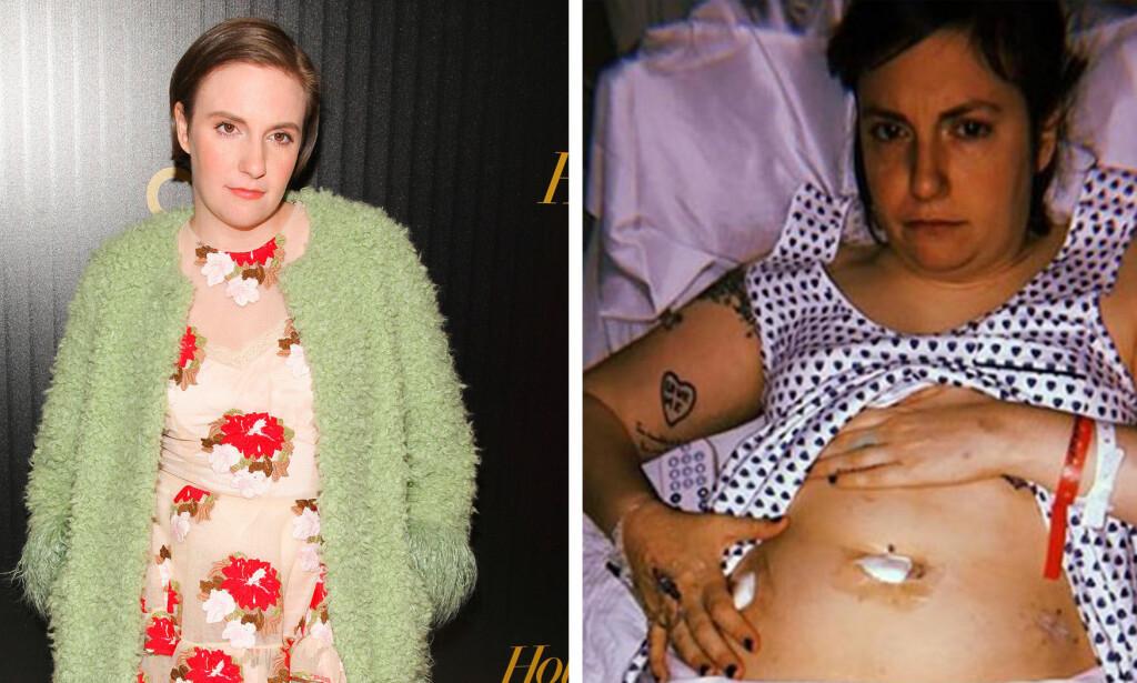 OPERERT: I et lengre innlegg på Instagram forteller Lena Dunham at hun i går opererte bort venstre eggstokk. Foto: NTB Scanpix / Skjermdump Instagram