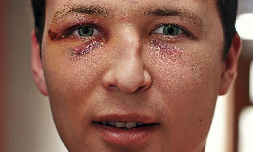 NESEBRUDD: Mann med tydelig feilstilling av nesen etter brudd. Foto: NTB / Scanpix / Shutterstock.