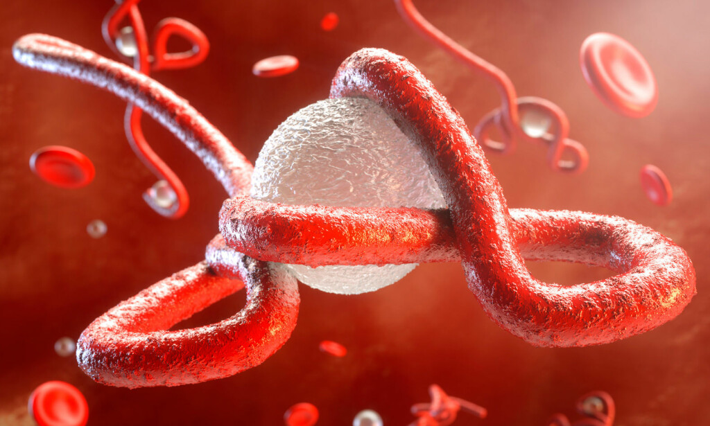 EBOLAVIRUS: Illustrasjon av et ebolavirus som angriper immunsystemet. Foto: NTB Scanpix/Shutterstock.