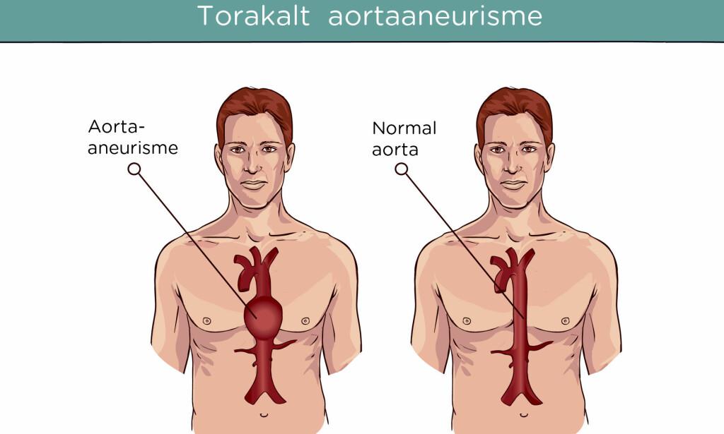 AORTAANEURISME I BRYSTHULEN: Gir ofte lite symptomer, men hvis de sprekker kan tilstanden bli fatal. Foto: NTB Scapix/Shutterstock. Norsk tekst v. Lommelegen. Foto: NTB Scanpix/Shutterstock.