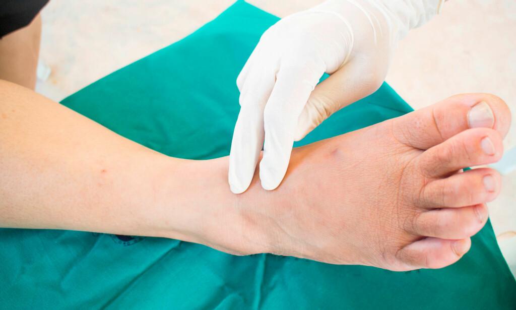SYMPTOMER PÅ NEVROPATI: Plager som smerte, kulde, stikk, brenning eller kløe– særlig i føttene. Foto: NTB Scanpix/Shutterstock