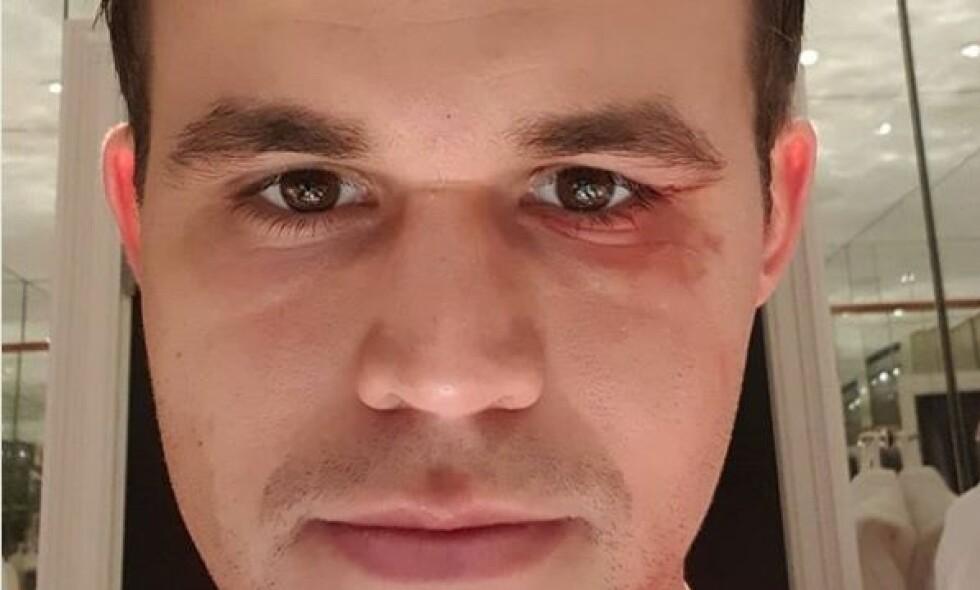 BLÅVEIS: Magnus Carlsen pådro seg en blåveis i en kollisjon med en lagkamerat på fotballtrening tirsdag. Foto: Instagram/magnus_carlsen
