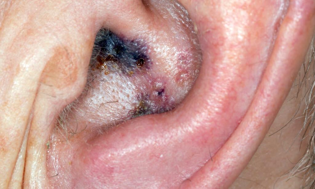 BLEMMER OG SÅR I ØRET: Nærbilde av en 75 år gammel mann som er angrepet av helvetesild, også kjent som herpes zoster. Sårene i øret er svært smertefulle. Foto: NTB Scanpix/Shutterstock