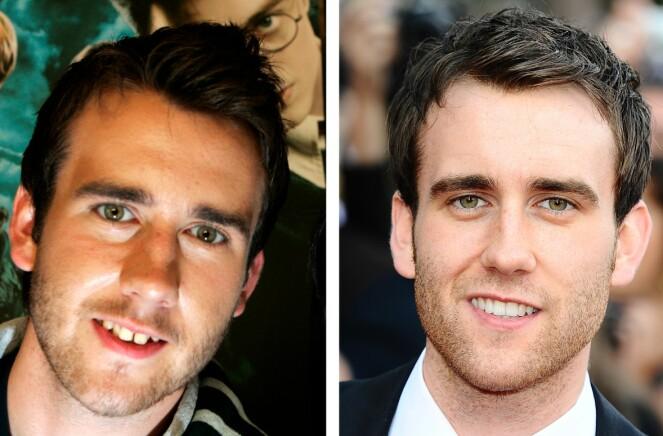 FIKSET TENNENE: Matthew Lewis fikk ryddet opp i tanngarden etter at han var ferdig med Nilus Langballe-rollen. Her i 2007 (t.v.) og 2011 - på premieren til den siste «Harry Potter»-filmen. Foto: NTB scanpix