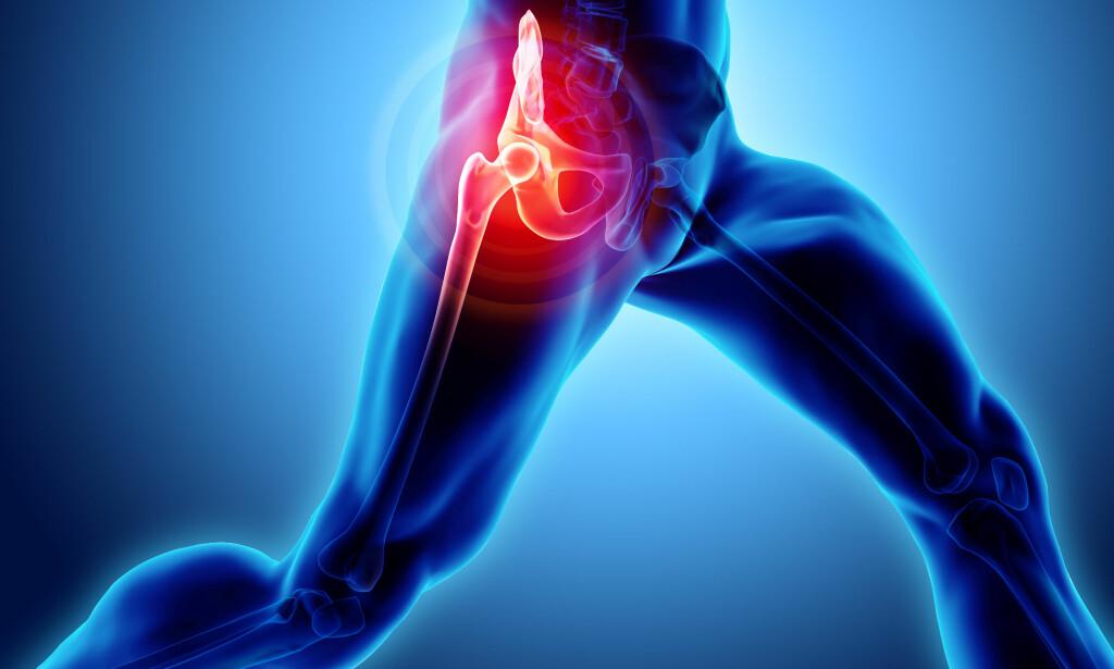 SMERTER I HOFTEN: Ved hoftesmerter hos unge, uten forutgående skade, bør epifysiolyse utelukkes som mulig årsak. Foto: NTB / Scanpix / Shutterstock.