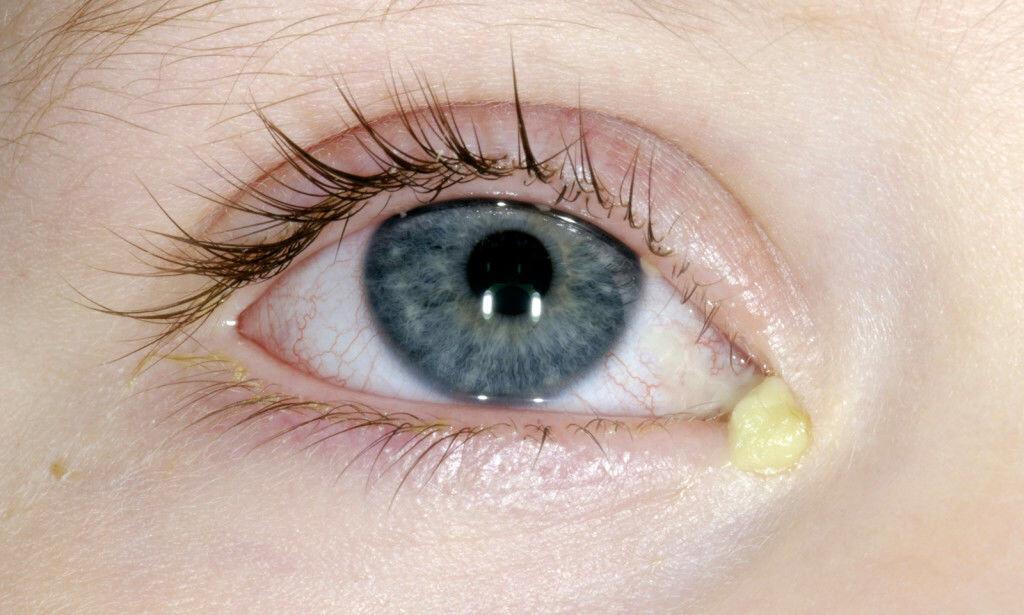 SYMPTOMER: Hovent, rødt øye med svie, kløe, puss eller tårer som renner, kan være tegn på øyekatarr. Foto: NTB Scanpix/Science Photo Library
