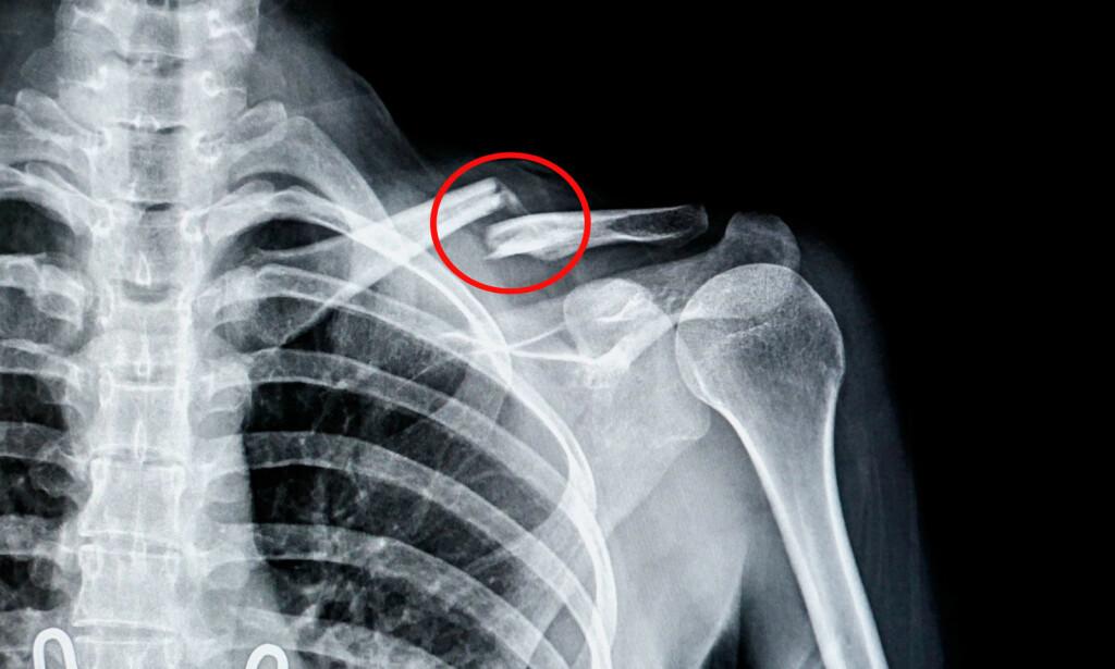 RØNTGEN AV BRUKKET KRAGEBEIN: Symptomene er smerter som blir forverret ved bevegelse av arm. Foto: NTB Scanpix/Shutterstock.