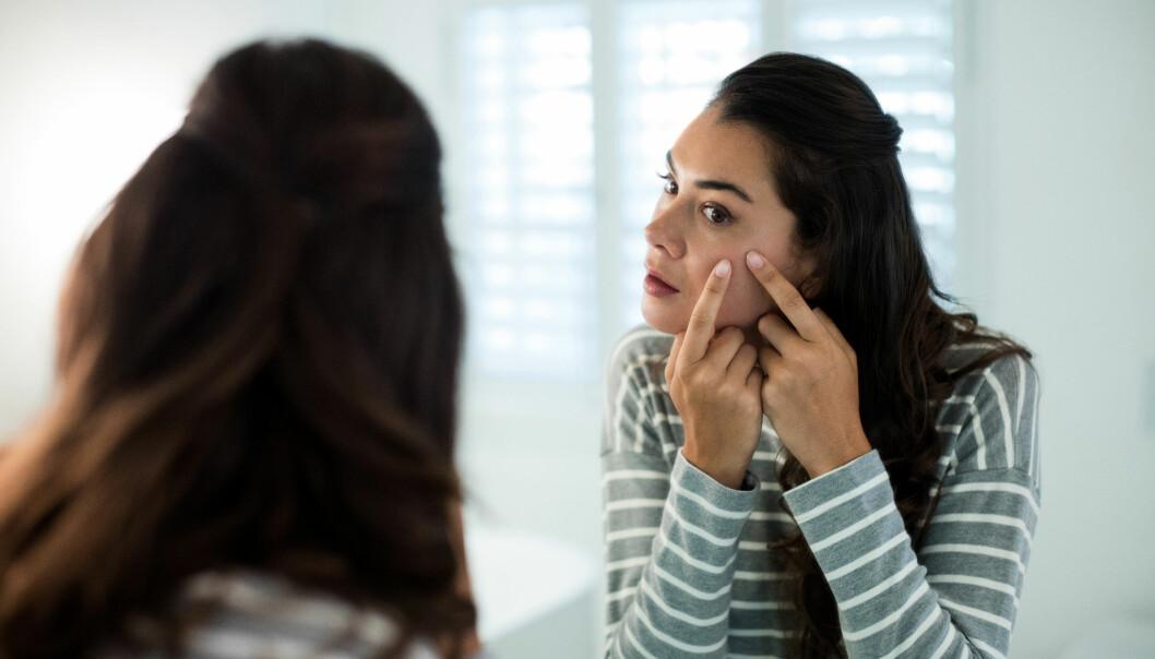 <strong>VOKSEN-KVISER:</strong> Undersøkelser viser at voksen-kviser oppstår hos 25 prosent av voksne menn og 50 prosent av voksne kvinner på et eller annet tidspunkt. FOTO: NTB Scanpix